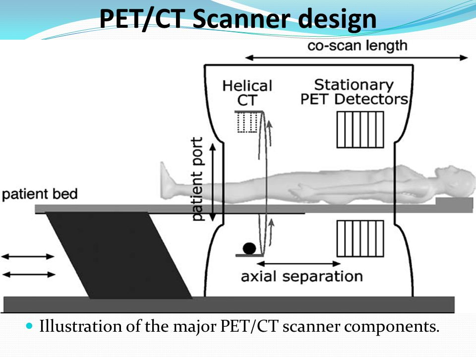 PET/CT Scanner design Illustration of the major PET/CT scanner components.