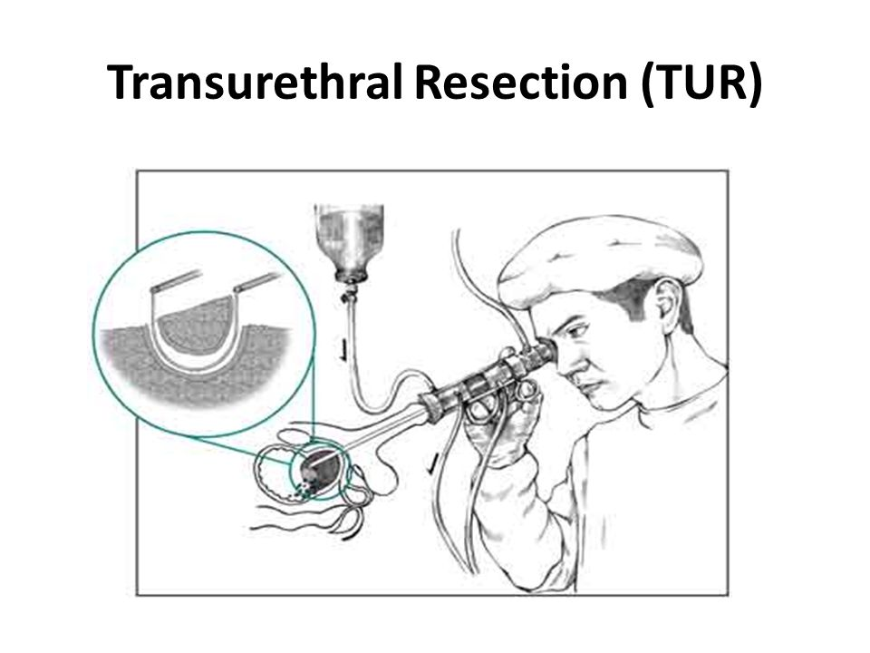 Transurethral Resection (TUR)