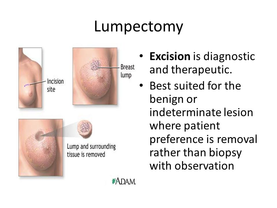 Lumpectomy Excision is diagnostic and therapeutic.