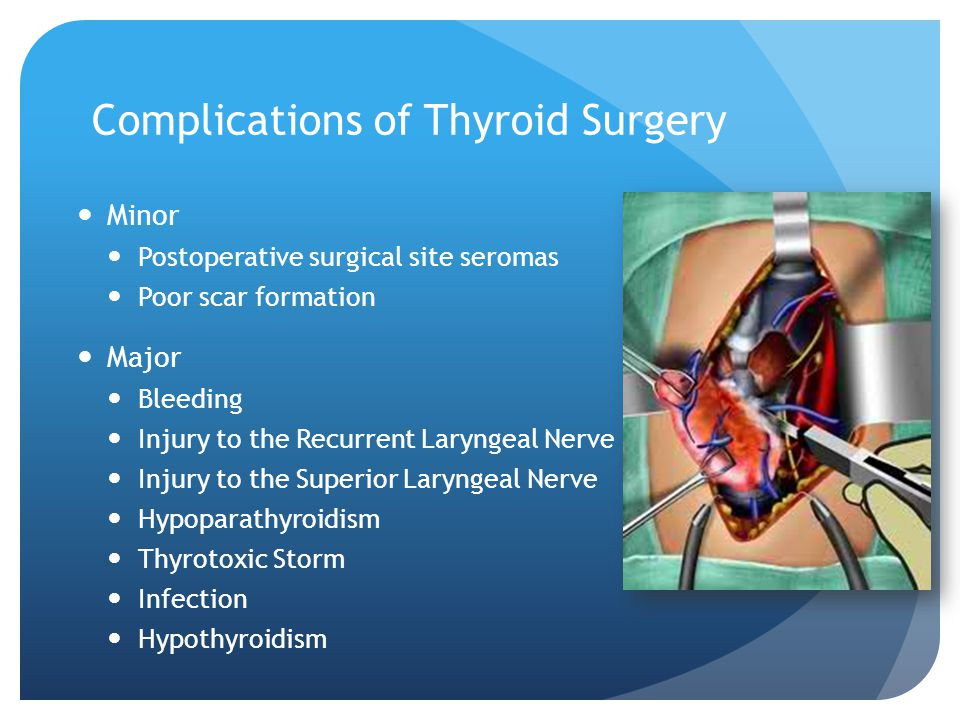 Complications of Thyroid Surgery