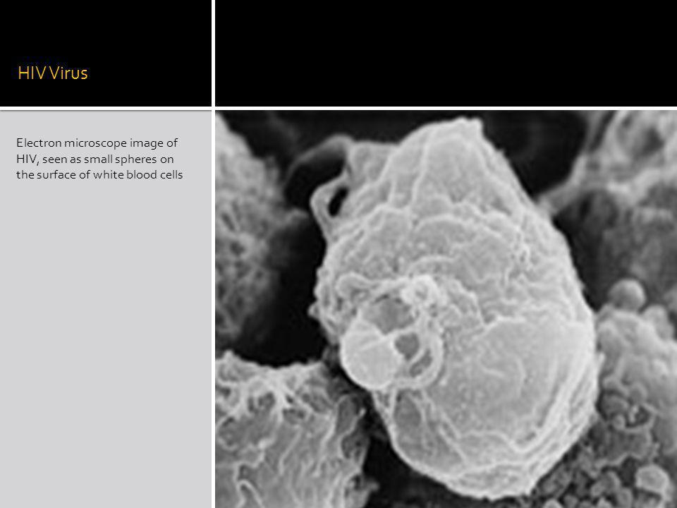 HIV Virus Electron microscope image of HIV, seen as small spheres on the surface of white blood cells.