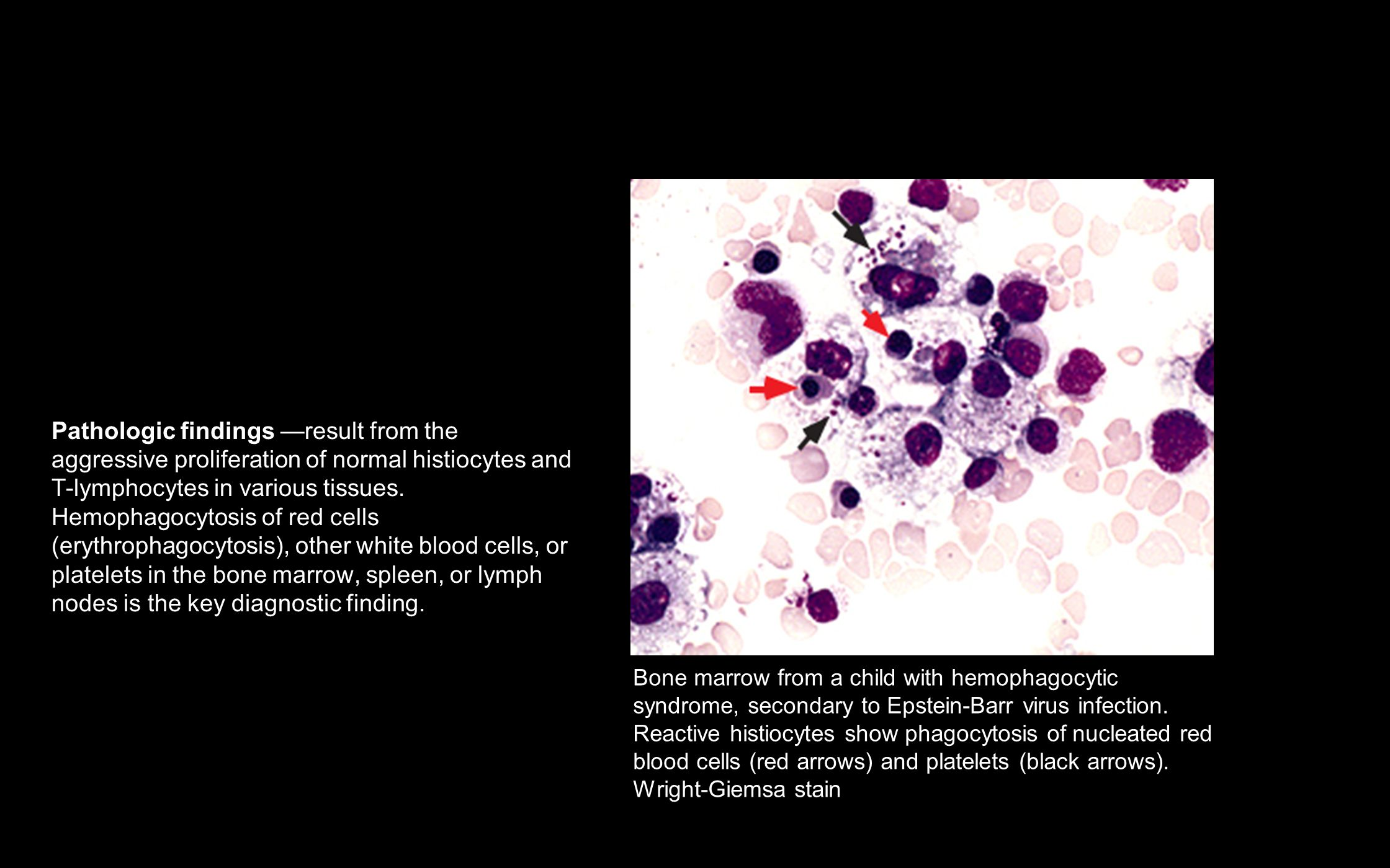 Pathologic findings —result from the aggressive proliferation of normal histiocytes and T-lymphocytes in various tissues. Hemophagocytosis of red cells (erythrophagocytosis), other white blood cells, or platelets in the bone marrow, spleen, or lymph nodes is the key diagnostic finding.