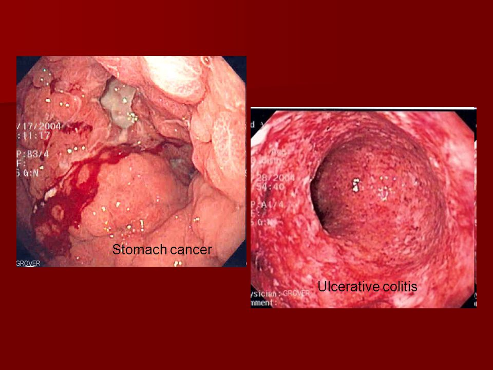 Stomach cancer Ulcerative colitis