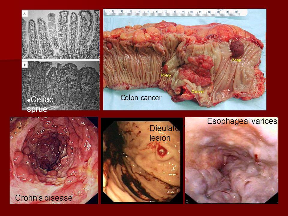 Celiac sprue Esophageal varices Dieulafoy s lesion Crohn s disease