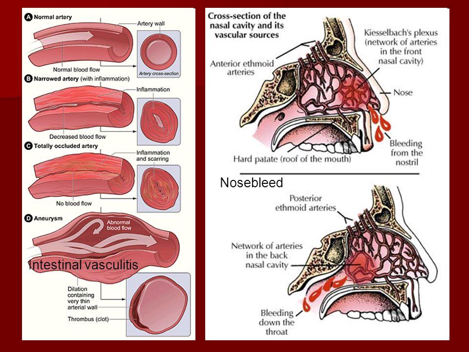 Nosebleed Intestinal vasculitis