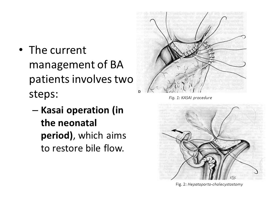 The current management of BA patients involves two steps: