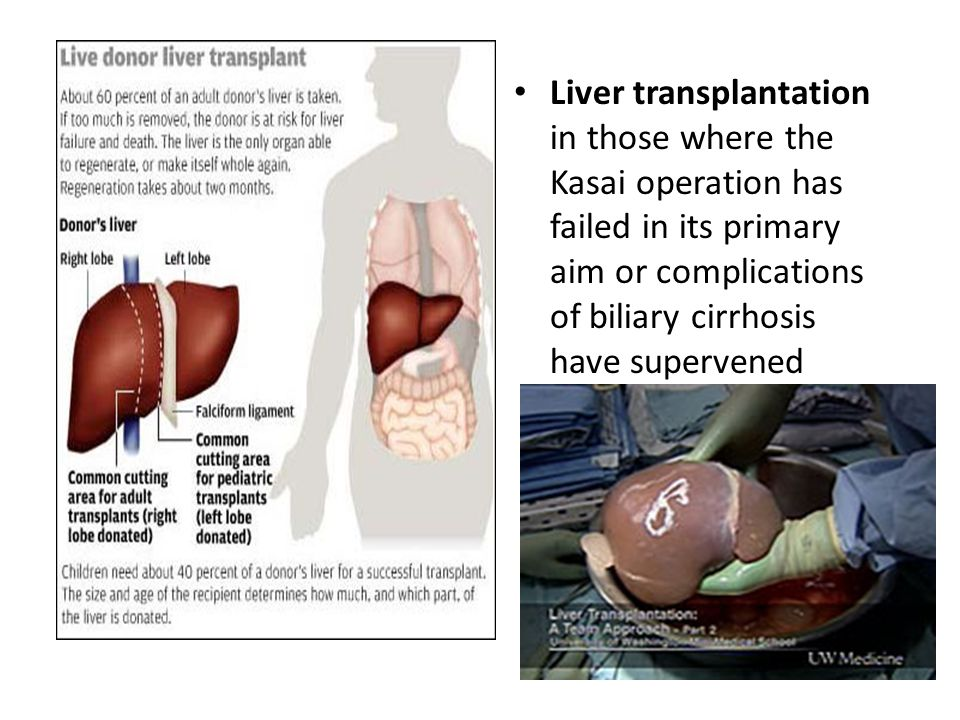 Liver transplantation in those where the Kasai operation has failed in its primary aim or complications of biliary cirrhosis have supervened