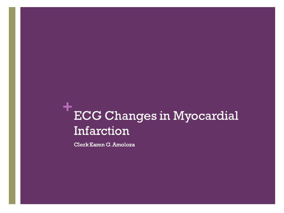 ECG Changes in Myocardial Infarction