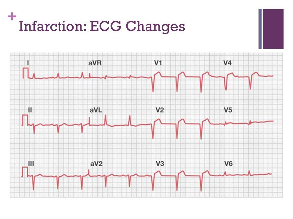 Infarction: ECG Changes