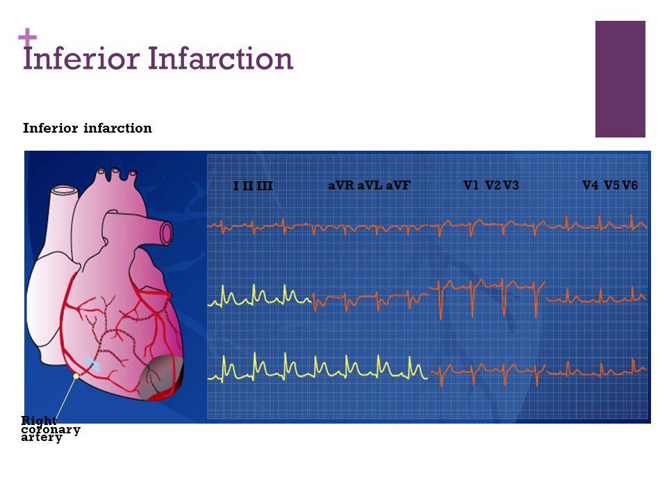 Inferior Infarction Inferior infarction I II III aVR aVL aVF V1 V2 V3