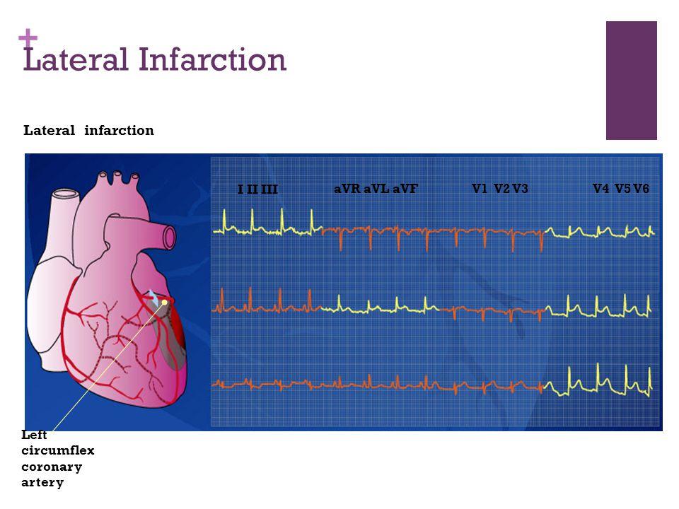 Lateral Infarction Lateral infarction I II III aVR aVL aVF V1 V2 V3
