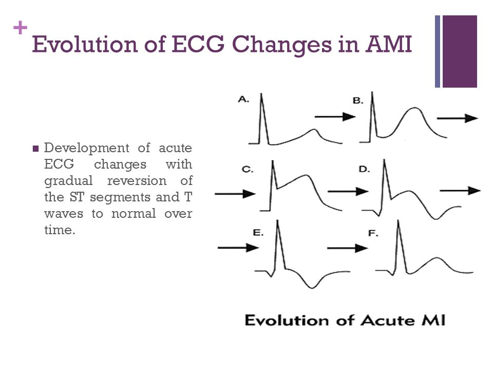 Evolution of ECG Changes in AMI