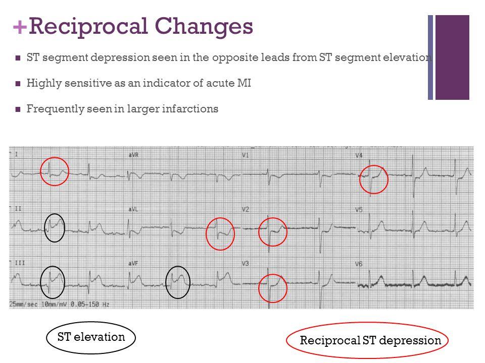 Reciprocal Changes ST elevation Reciprocal ST depression
