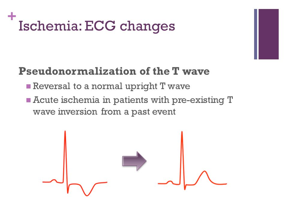 Ischemia: ECG changes Pseudonormalization of the T wave
