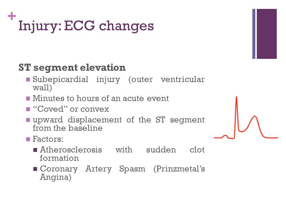 Injury: ECG changes ST segment elevation