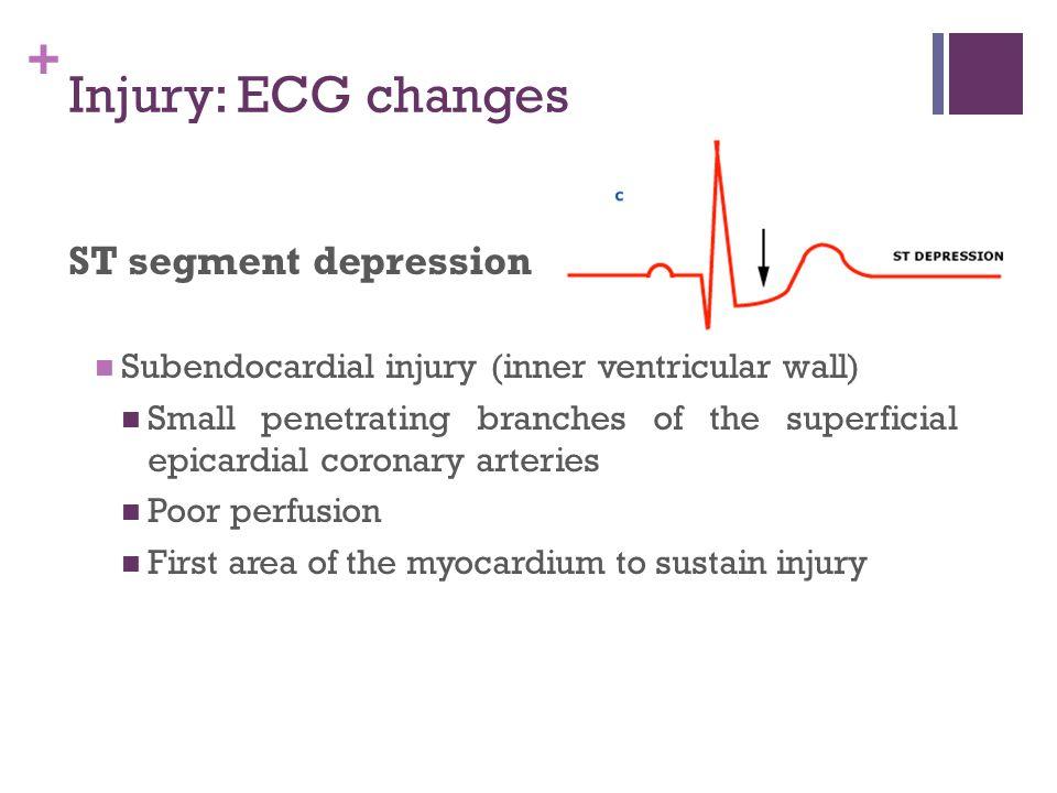 Injury: ECG changes ST segment depression