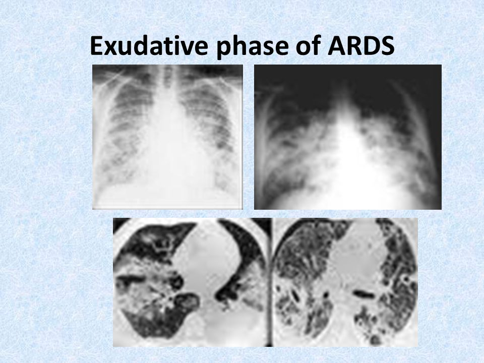 Exudative phase of ARDS
