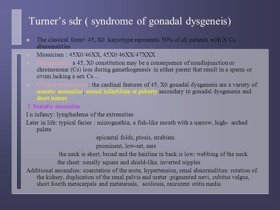 Turner's sdr ( syndrome of gonadal dysgeneis)