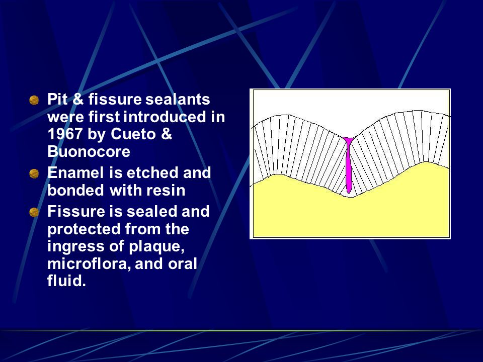 Pit & fissure sealants were first introduced in 1967 by Cueto & Buonocore