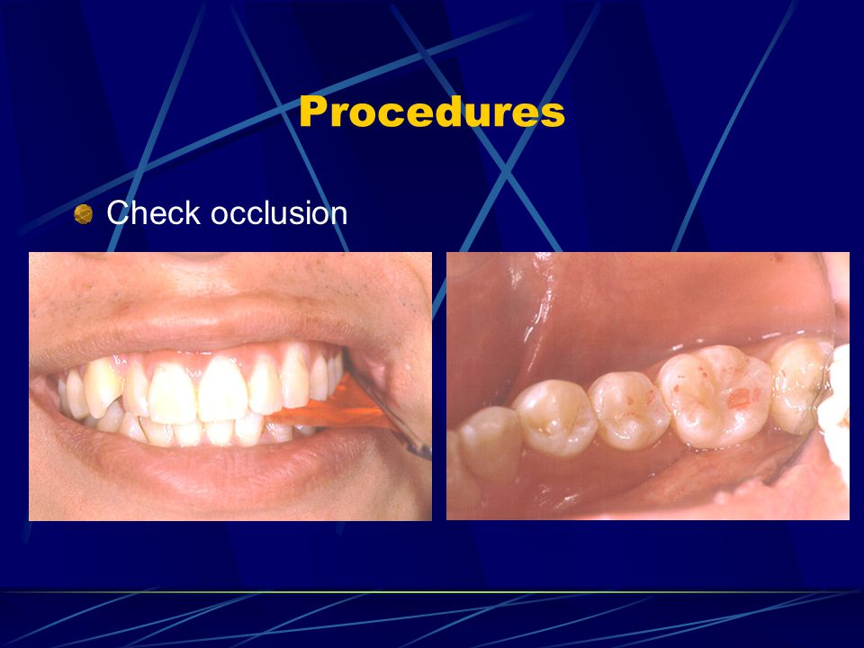 Procedures Check occlusion