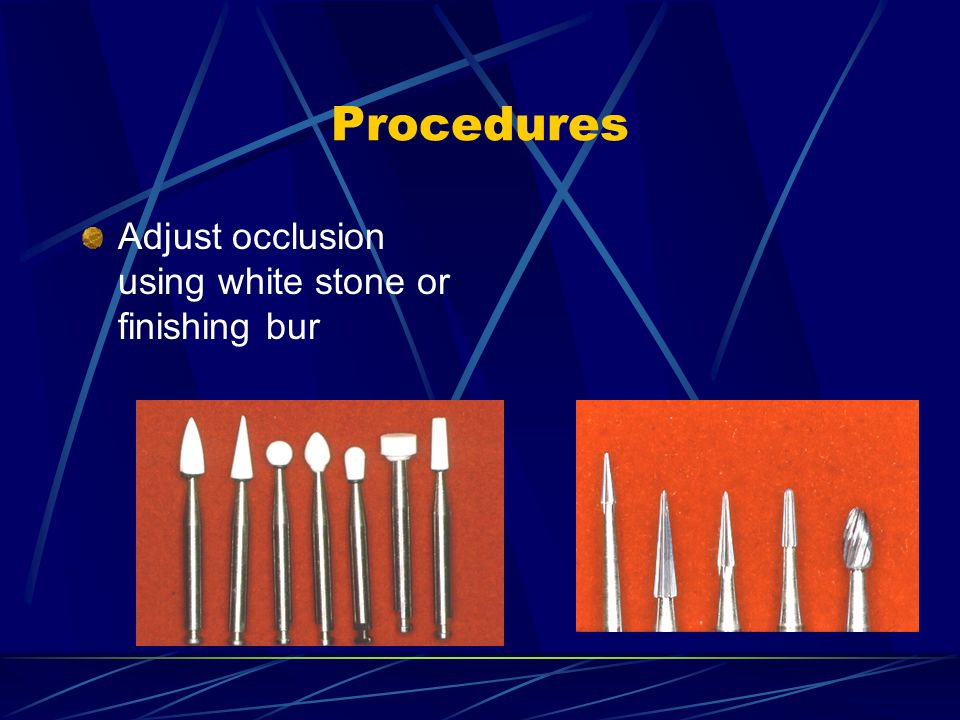 Procedures Adjust occlusion using white stone or finishing bur
