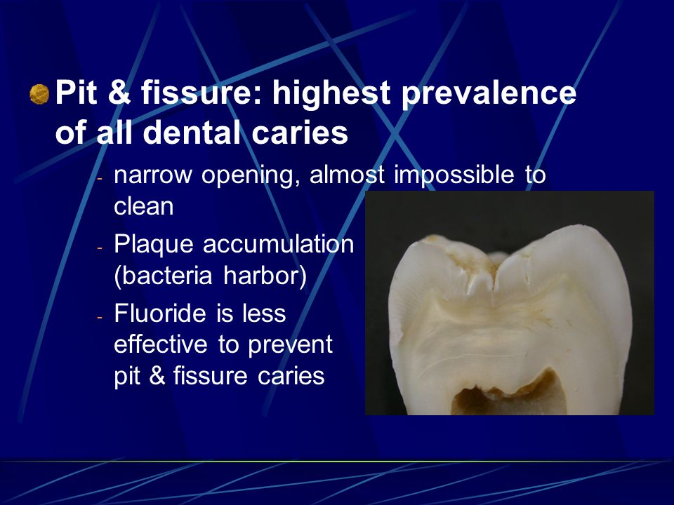 Pit & fissure: highest prevalence of all dental caries