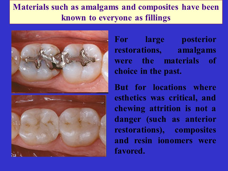 Materials such as amalgams and composites have been known to everyone as fillings