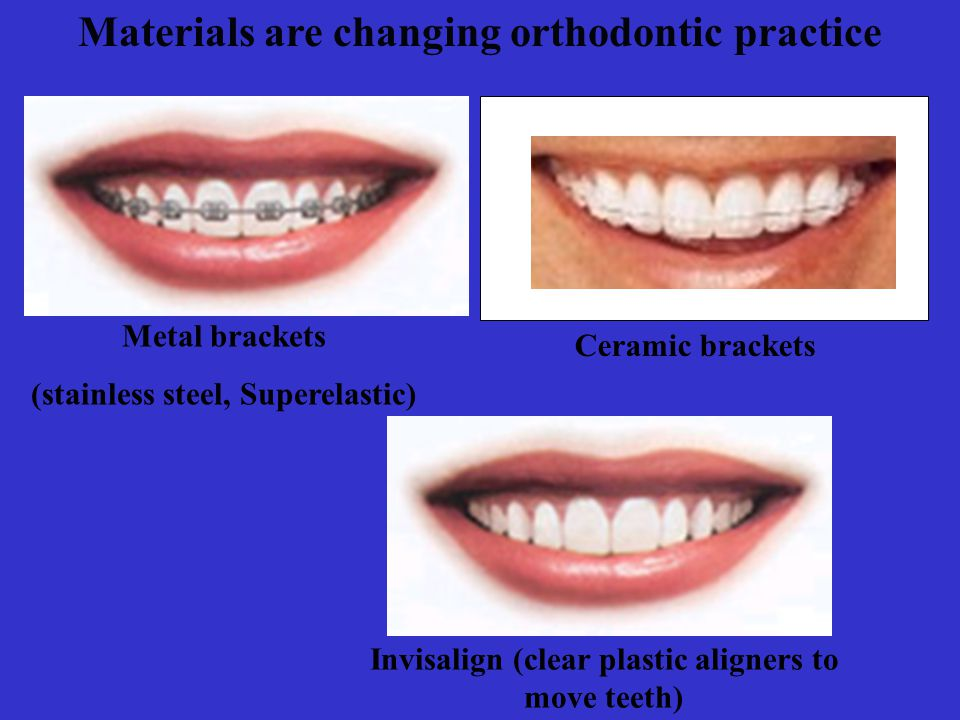 Materials are changing orthodontic practice