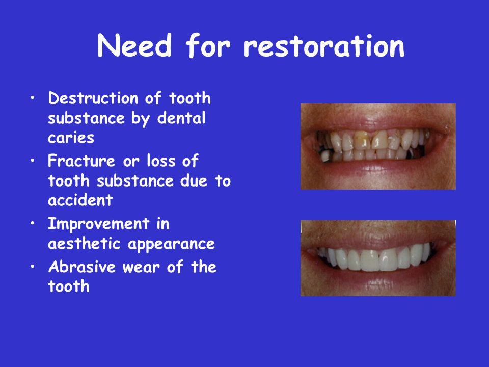 Need for restoration Destruction of tooth substance by dental caries