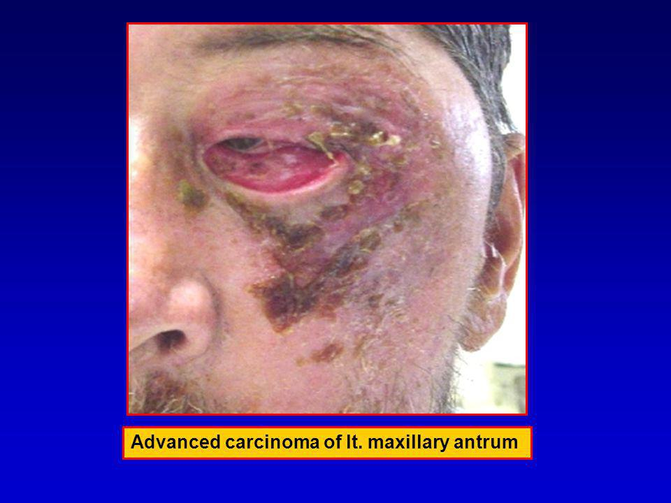 Advanced carcinoma of lt. maxillary antrum