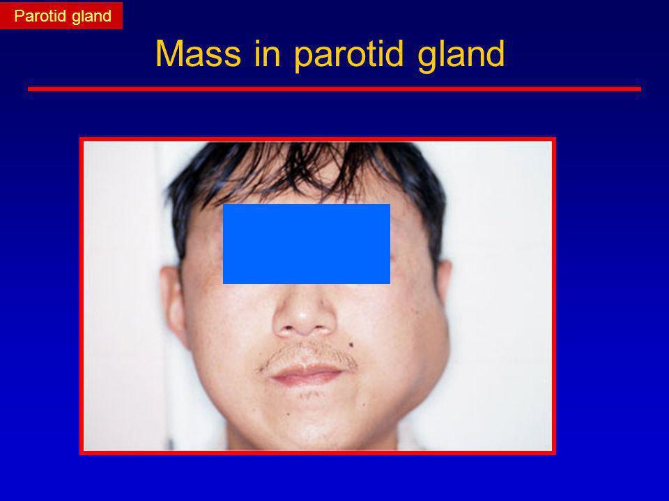Parotid gland Mass in parotid gland