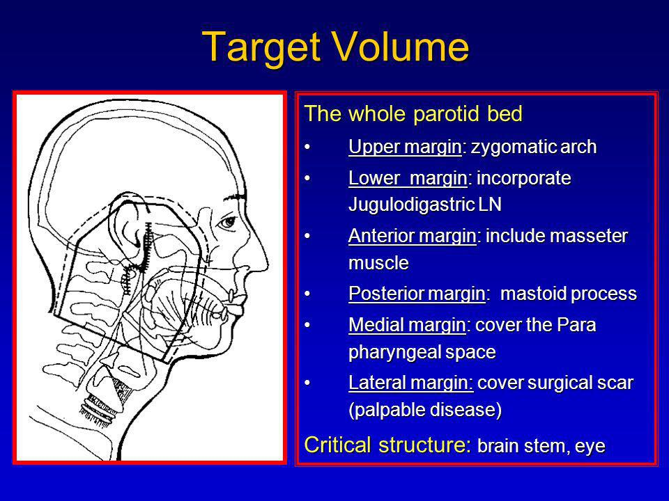 Target Volume The whole parotid bed