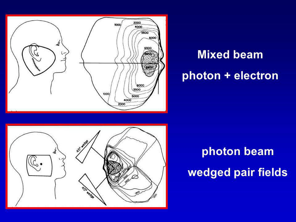 Mixed beam photon + electron photon beam wedged pair fields