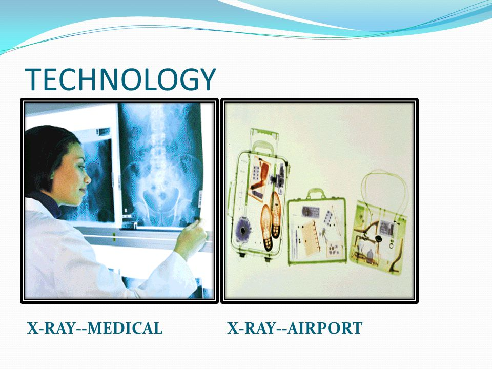 TECHNOLOGY X-RAY--MEDICAL X-RAY--AIRPORT