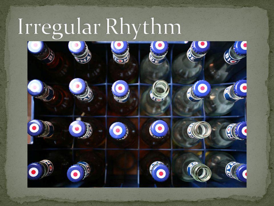 Irregular Rhythm