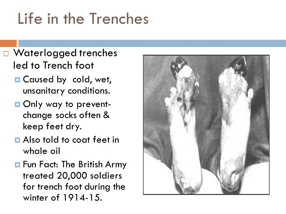 Life in the Trenches Waterlogged trenches led to Trench foot