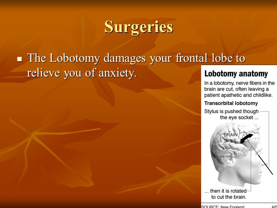 Surgeries The Lobotomy damages your frontal lobe to relieve you of anxiety.