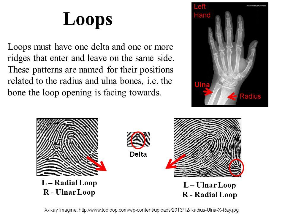 Loops Radius. Ulna. Left Hand.