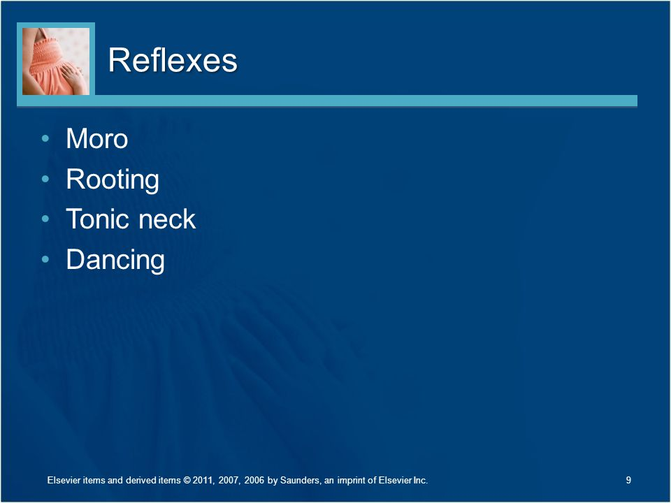 Reflexes Moro Rooting Tonic neck Dancing Describe each reflex.