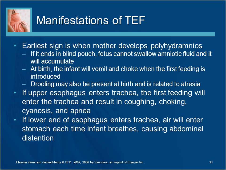 Manifestations of TEF Earliest sign is when mother develops polyhydramnios.