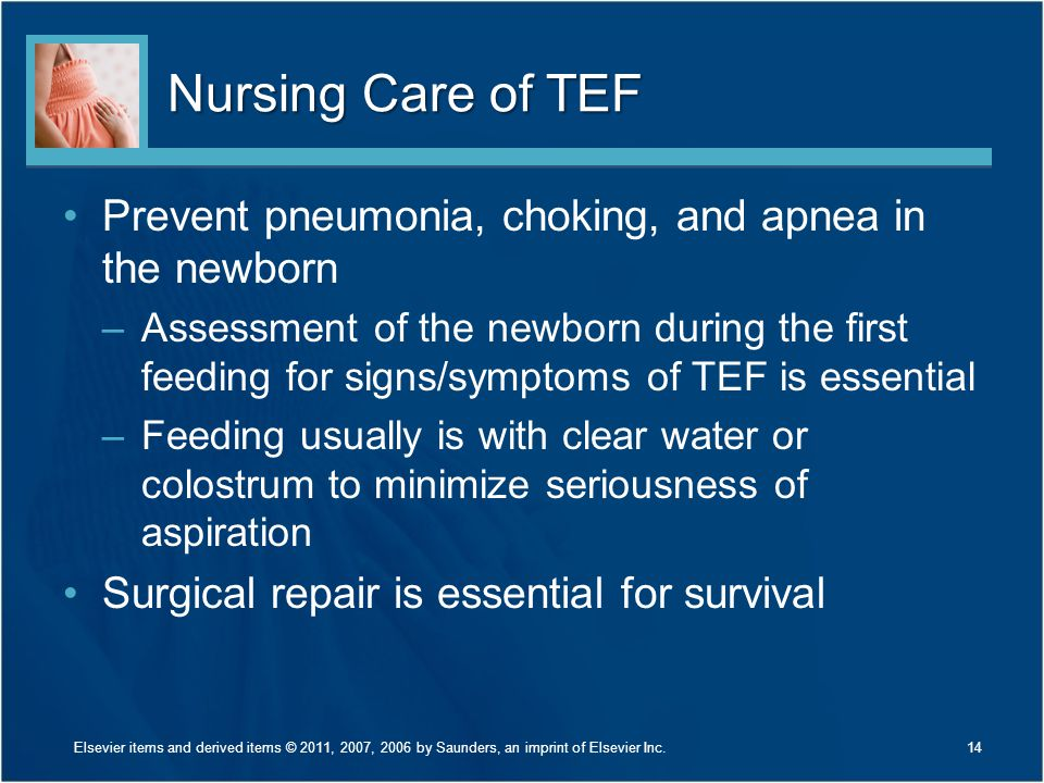 Nursing Care of TEF Prevent pneumonia, choking, and apnea in the newborn.