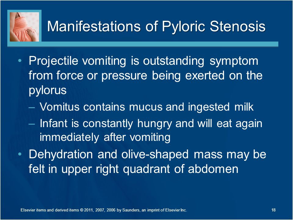 Manifestations of Pyloric Stenosis