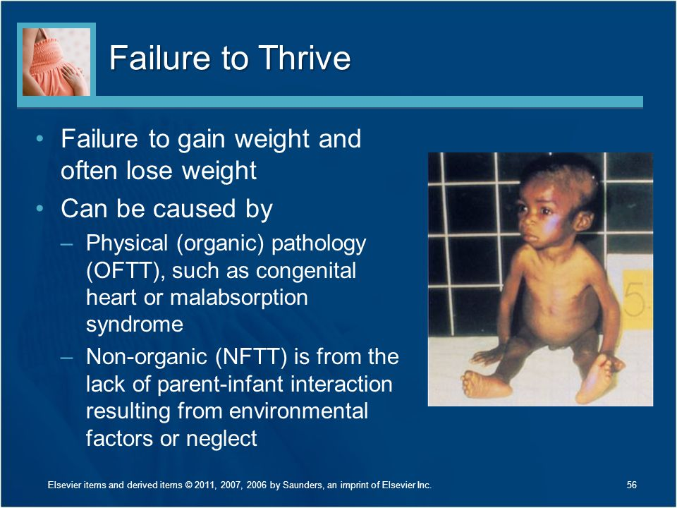 Failure to Thrive Failure to gain weight and often lose weight