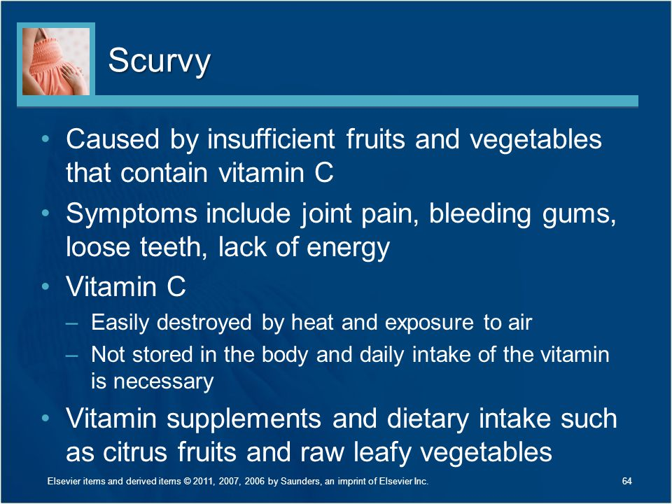 Scurvy Caused by insufficient fruits and vegetables that contain vitamin C. Symptoms include joint pain, bleeding gums, loose teeth, lack of energy.