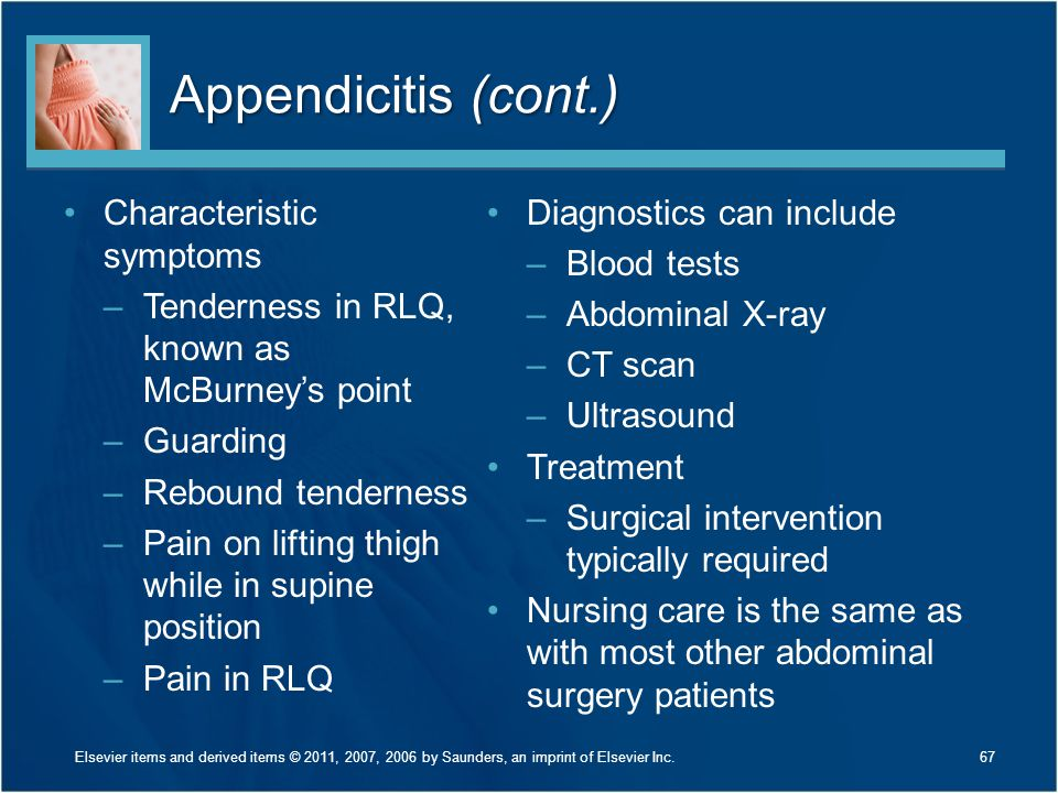 Appendicitis (cont.) Characteristic symptoms