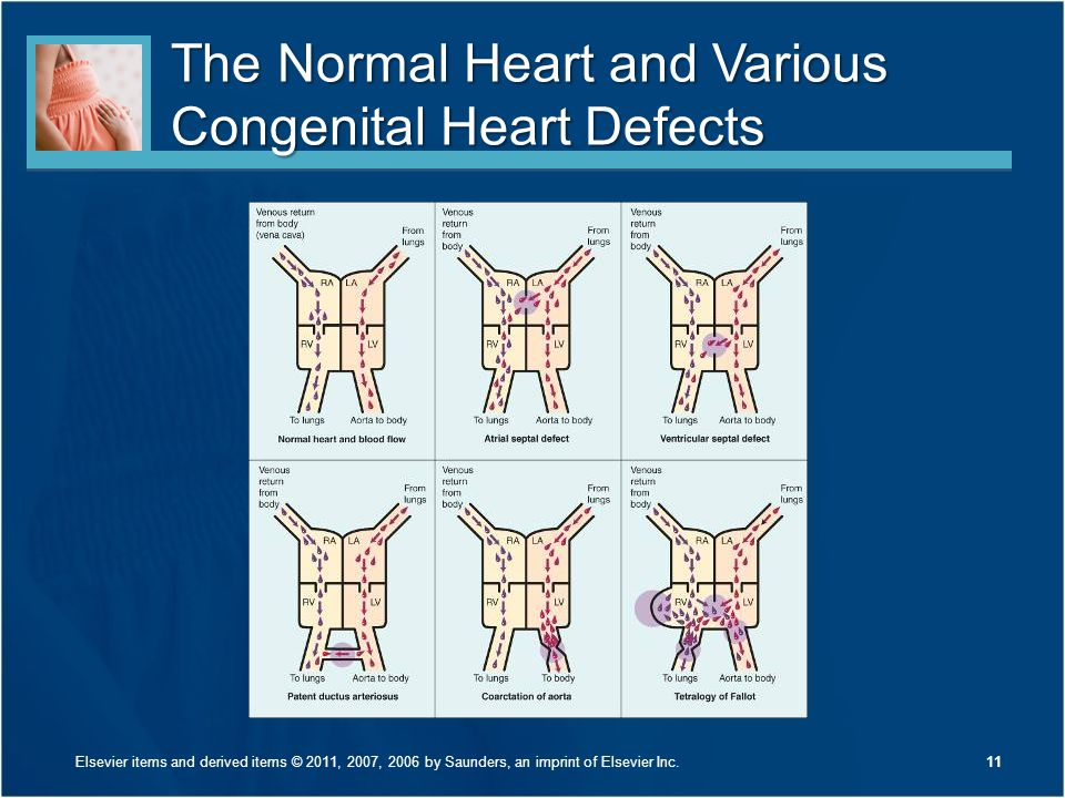 The Normal Heart and Various Congenital Heart Defects