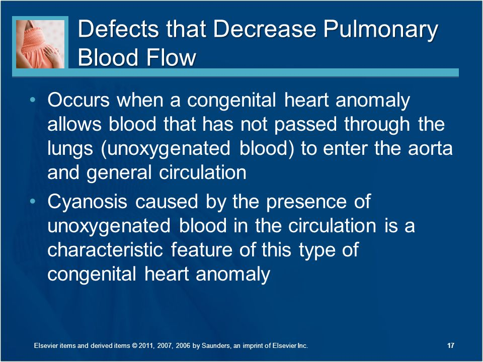 Defects that Decrease Pulmonary Blood Flow