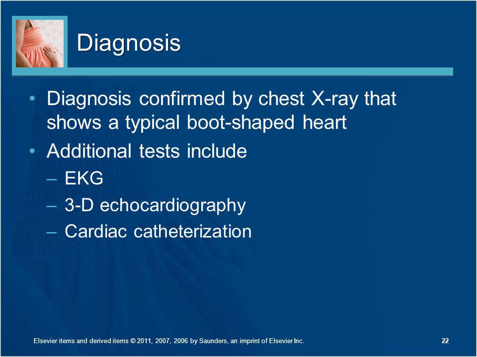 Diagnosis Diagnosis confirmed by chest X-ray that shows a typical boot-shaped heart. Additional tests include.
