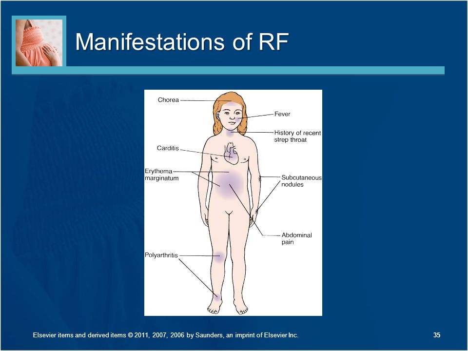 Manifestations of RF Discuss Figure 26-4 on page 619.