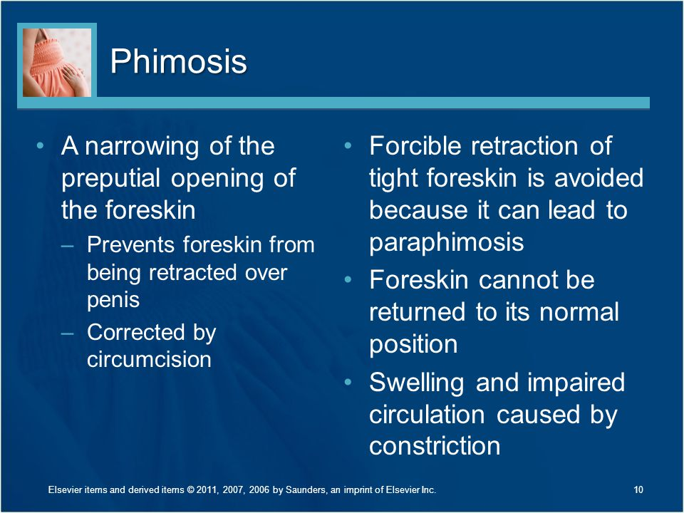 Phimosis A narrowing of the preputial opening of the foreskin